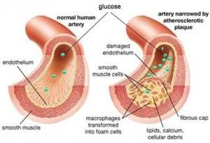 obat diabetes herbal alami