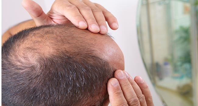 Terapi Pengobatan Rambut Rontok Dengan Produk Herbal HNI HPAI