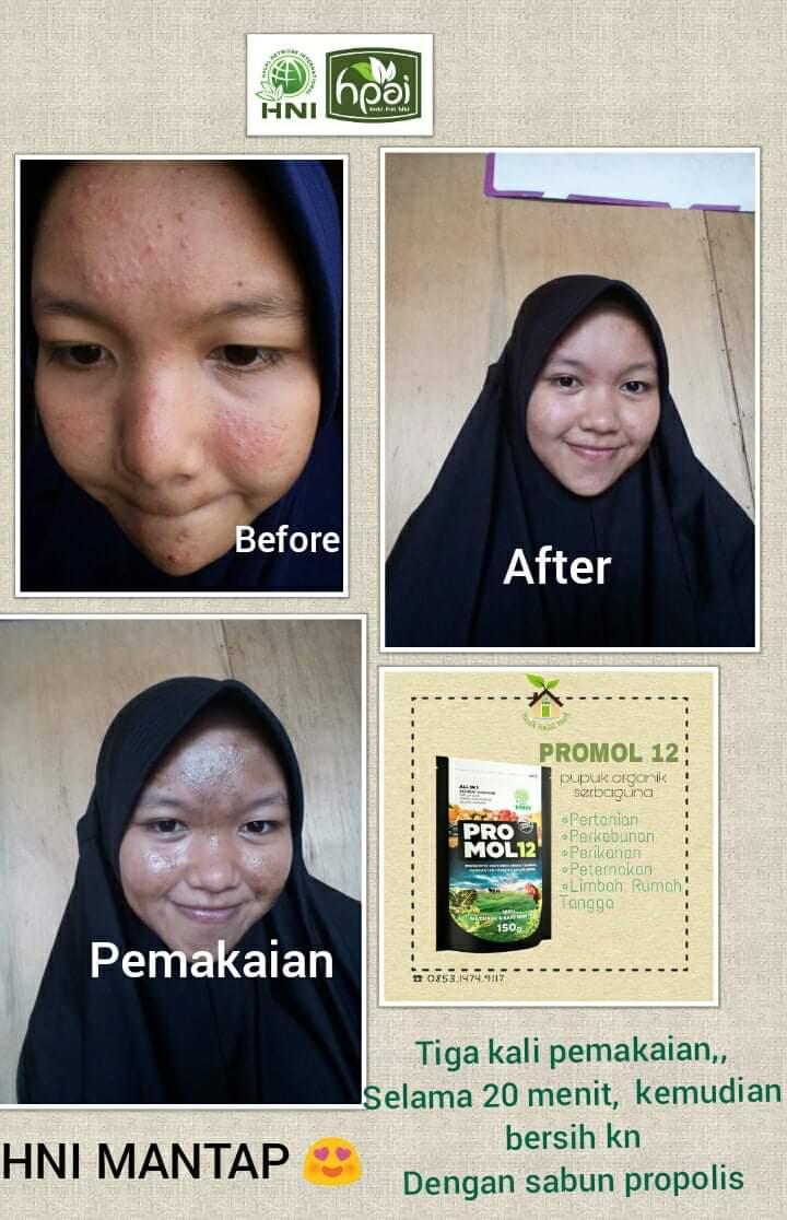 Cara Menghilangkan Jerawat Secara Alami, Aman dan Cepat Dengan Produk Herbal HNI HPAI – Masker Wajah Alami Menghilangkan Wajah dan Bekasnya
