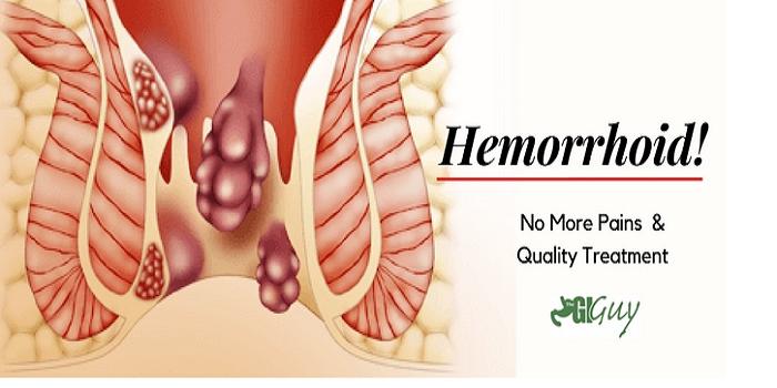 Resep Obat Herbal HNI HPAI Untuk Wasir – Cara Mengobati Wasir/ Ambeien Secara Alami Tanpa Operasi Dengan Herbal HNI HPAI