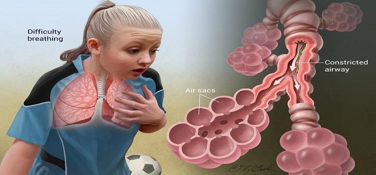 obat herbal asma - cara mengobati asma menggunakan Resep Herbal HNI HPAI