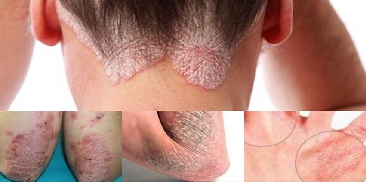 Contoh Gambar alergi Kulit yang mungkin disebabkan oleh cuaca, makanan, kosmetik